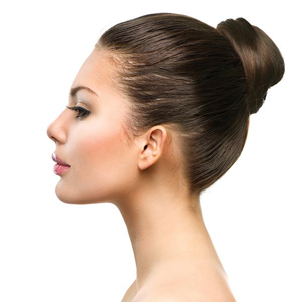 Rinoplastia: Giba o caballete nasal y nariz ancha