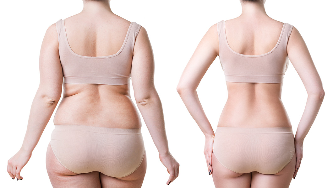 Tratamientos de cirugía estética corporal en el Instituto Muñoz Cariñanos