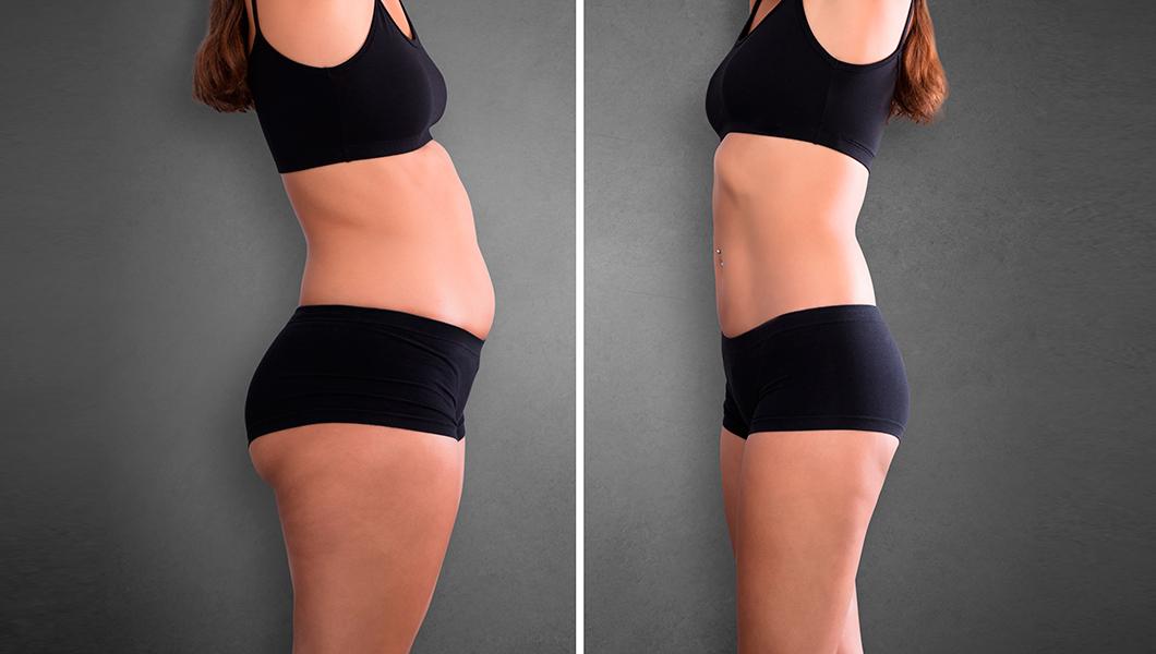 ¿En qué consiste la liposucción?