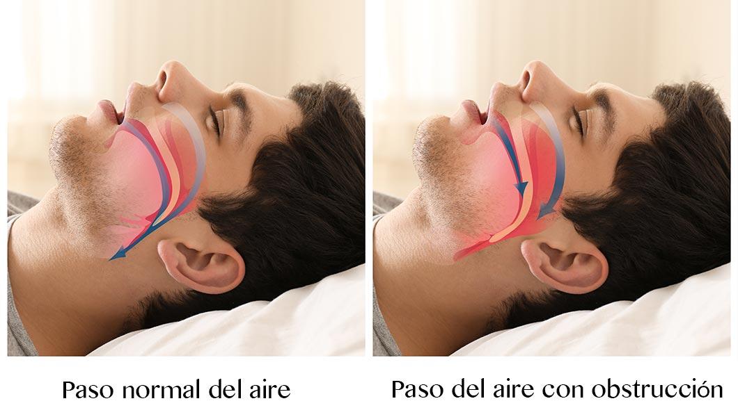 Qué es la apnea del sueño y cómo la trata el otorrino